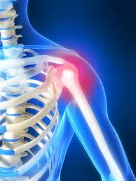 shoulder - Shoulder & Arm Pain