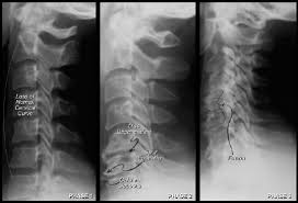 spinal degeneration - Spinal Degeneration - How To Prevent With Chiropractic